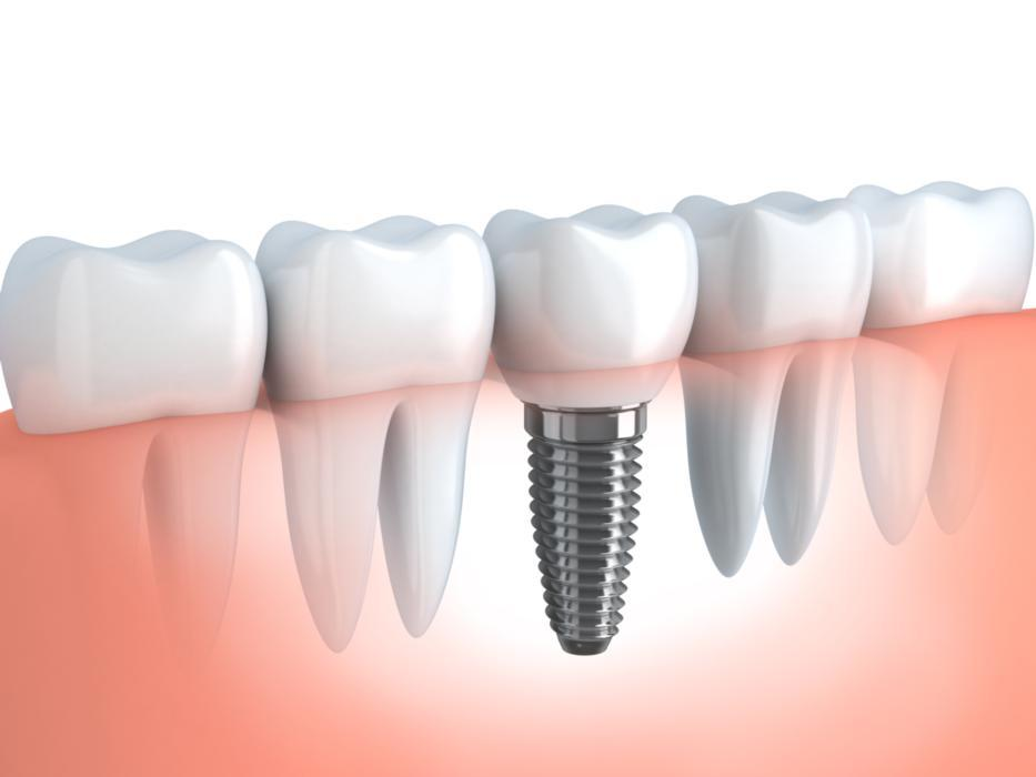 Dental Implants | Arlington TX