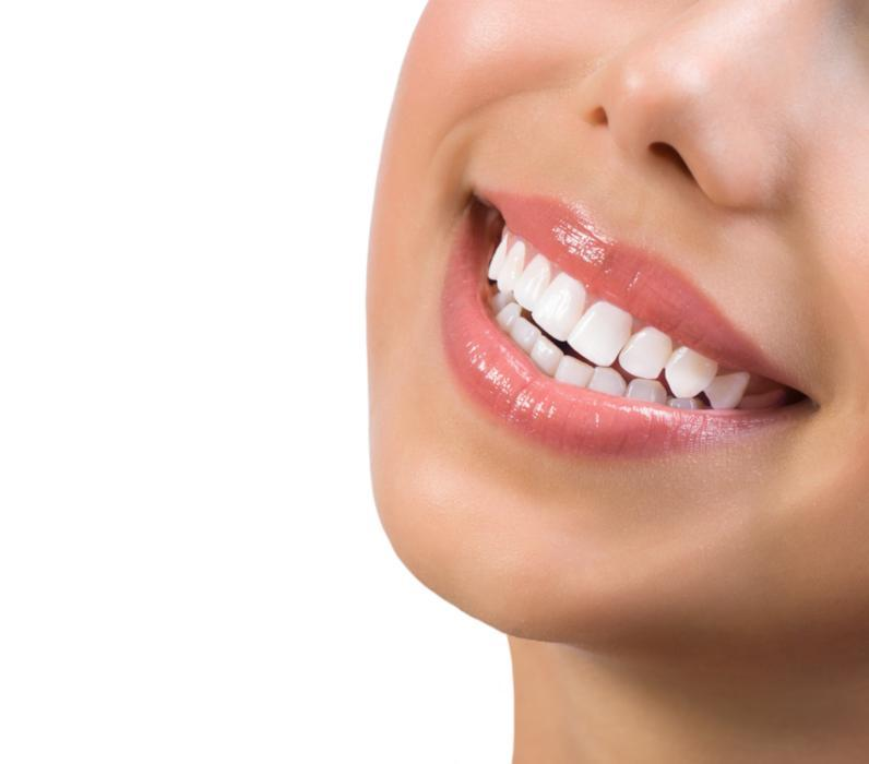 a close up of a woman's smile | gum disease treatment arlington tx