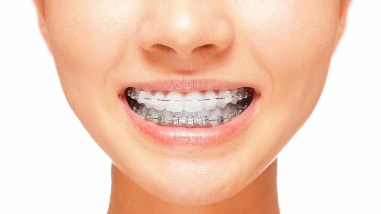 a close up image of a smile with six month smiles braces | arlington orthodontics