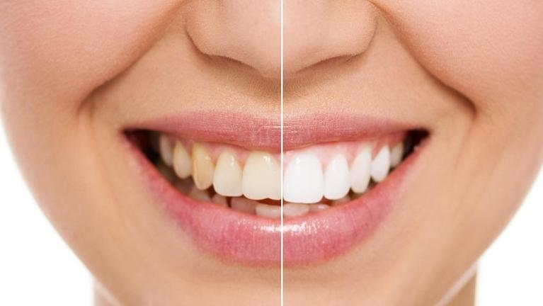 Woman's mouth before and after teeth whitening