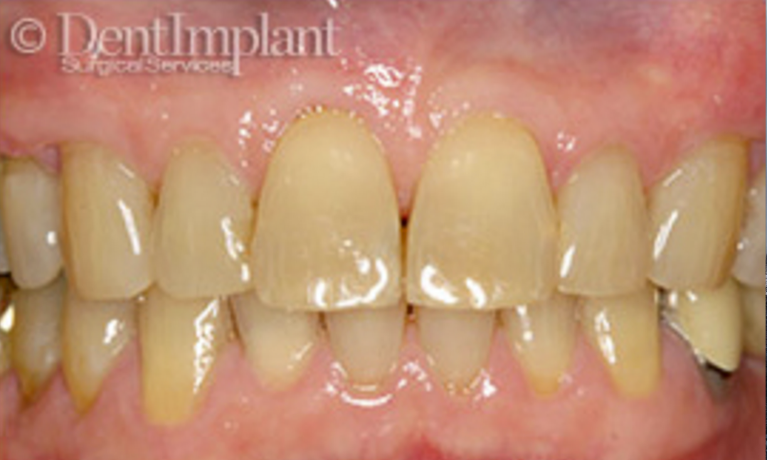 Gum-Grafts-After-Image