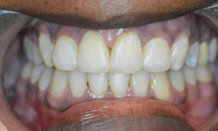 Adult-Orthodontics-Braces-Six-Month-Smiles-After-Image