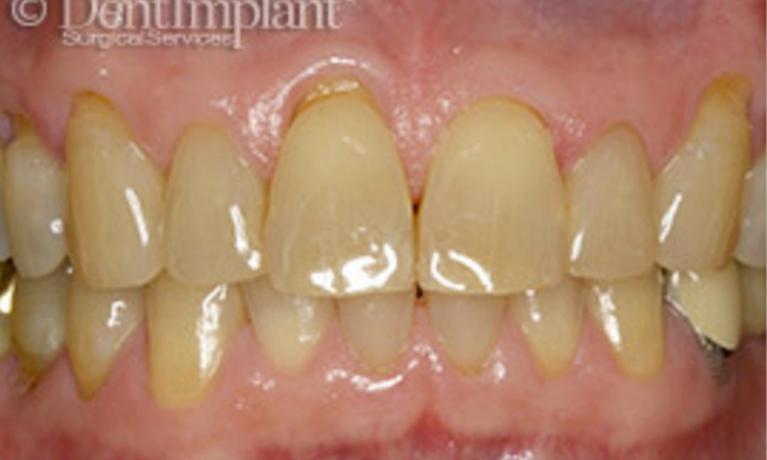 Gum-Grafts-Before-Image
