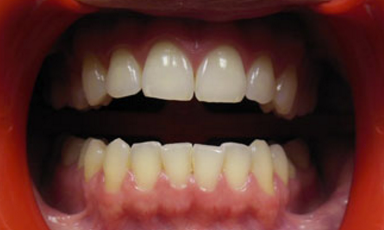 KoR-Whitening-Before-Image