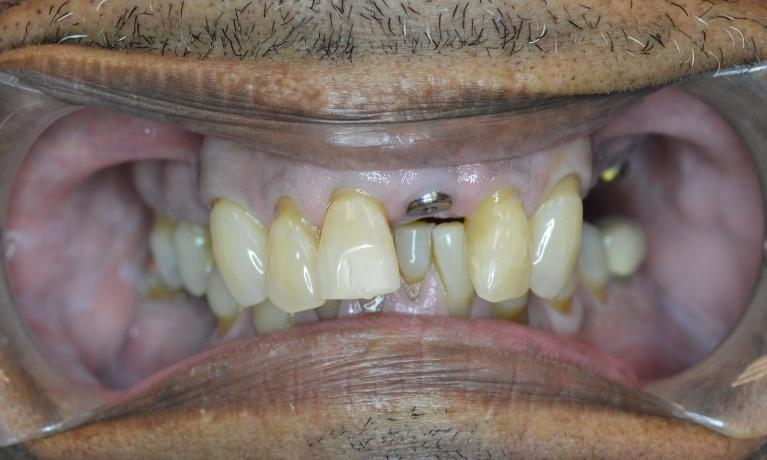 Single-Implant-Before-Image