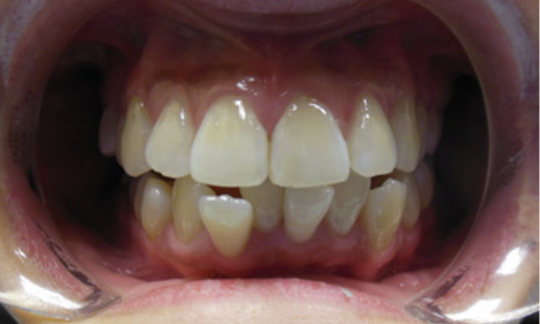 Six-Month-Smiles-Before-Image