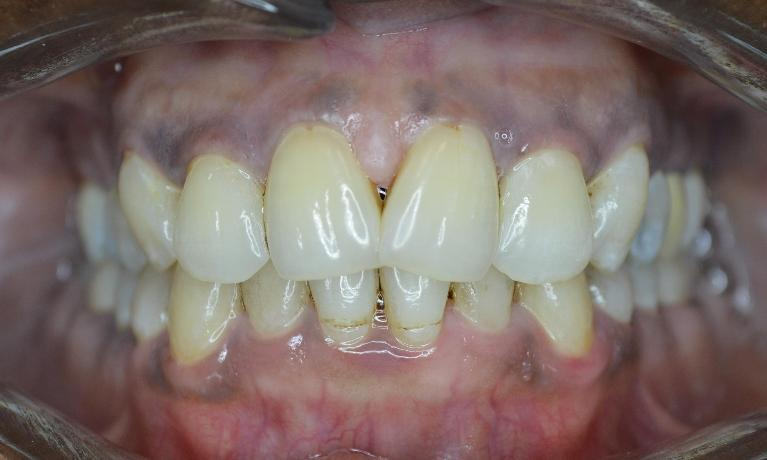 Adult-Orthodontics-Braces-Six-Month-Smiles-Before-Image